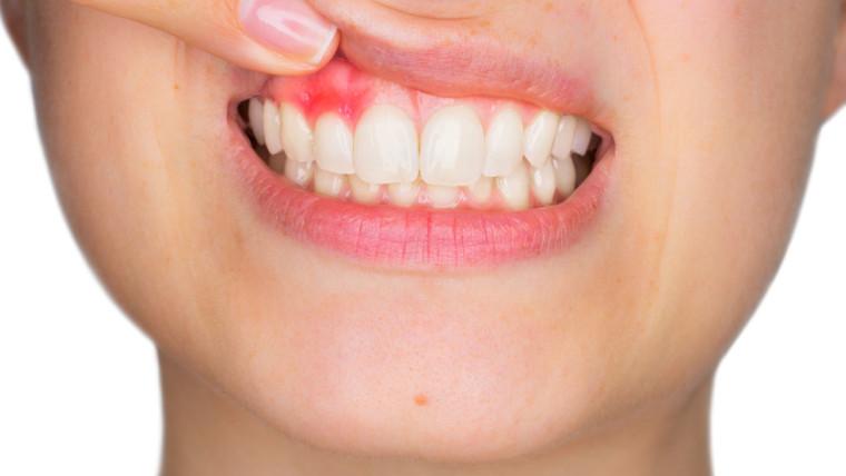 Parodontite: cos'è e quali rischi comporta