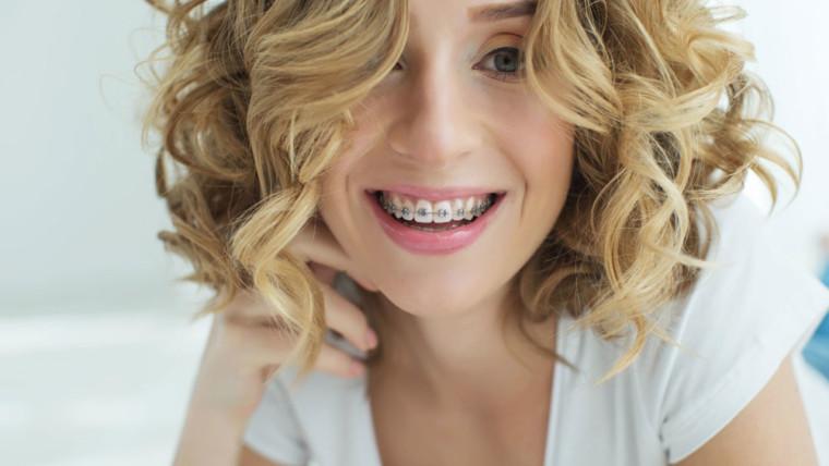 """""""Apparecchio"""" ma non solo. Perché ricorrere al trattamento ortodontico?"""