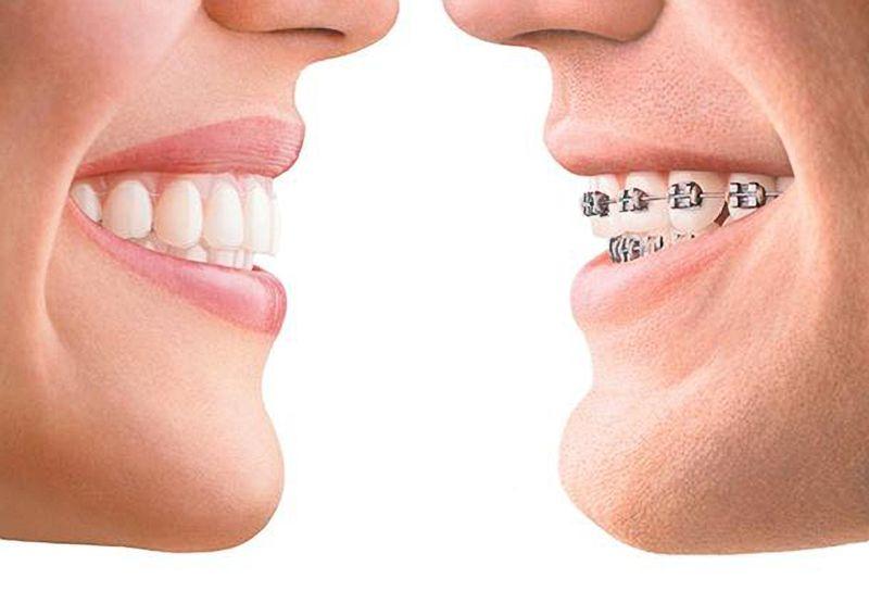 Ortodonzia / Posturologia