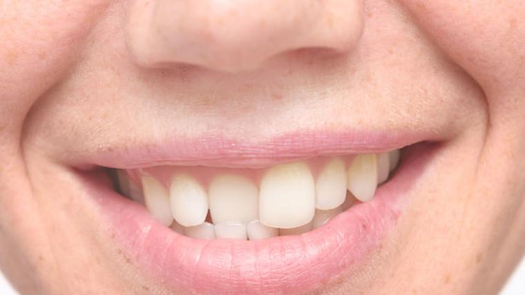 I denti storti, cause e rimedi