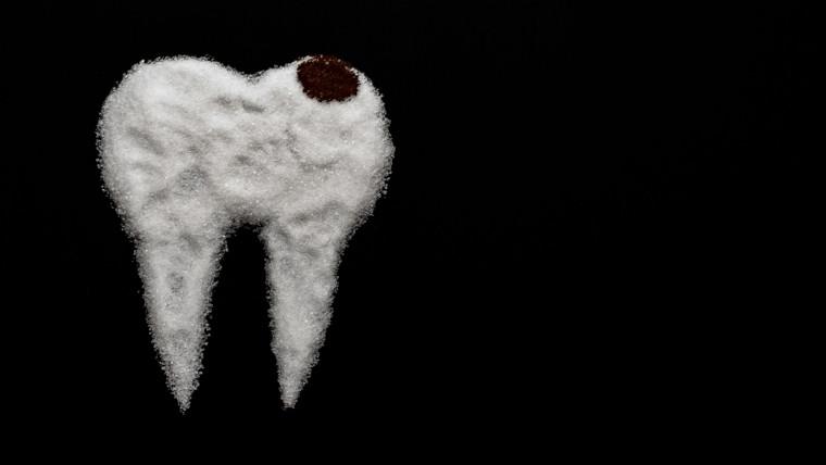 Diabete e denti: relazione a doppia via